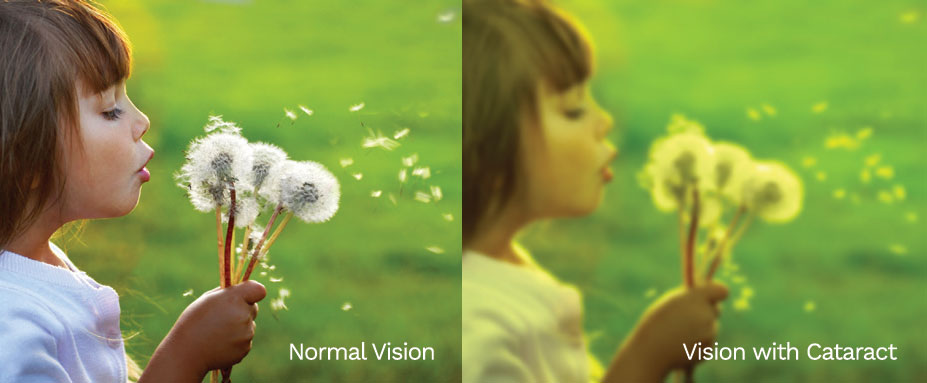 cataract vision comparison