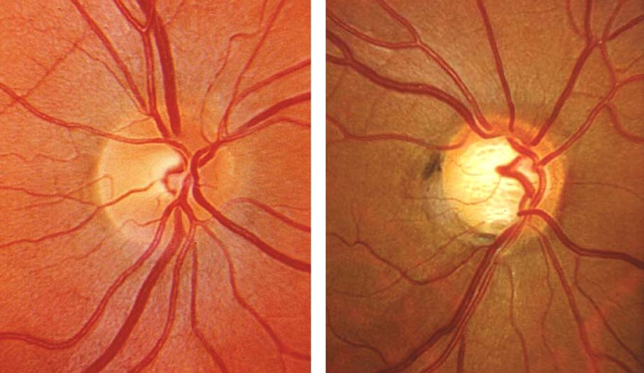 optic nerve and open angle glaucoma 2017-1-10 3 demographic age gender race ocular intraocular pressure optic nerve head myopia hypermetropia systemic diabetes.