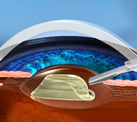 No-Blade Cataract Surgery